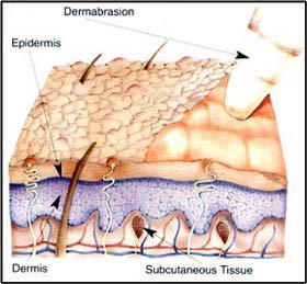 dermabrasionsivilcetedavi